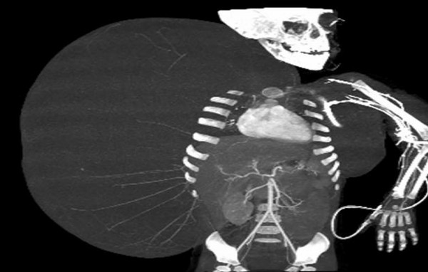 In this still image taken from an undated video released by the Mexican Social Security Institute (IMSS) on Tuesday, June 26, 2012, an image created through medical imaging technology shows an X-ray-like image of 2-year-old Jesus Rodriguez, prior to having a benign tumor removed from his body. Mexican doctors successfully removed a 33 pound benign tumor protruding from the boy's right side, connected to the body from the armpit to the hip, and weighed more than Jesus.