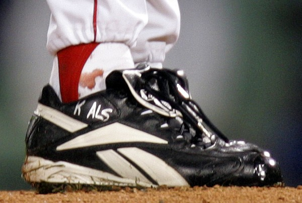 This Oct. 24, 2004 file photo shows blood around the ankle of Boston Red Sox pitcher Curt Schilling during the first inning of Game 2 of the World Series in Boston. Schilling might have to sell or give up the famed blood-stained sock he wore on the team's way to the 2004 World Series championship to cover millions of dollars in loans he guaranteed to his failed video game company.