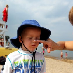 Science seeks ways to take sting out of sunburn